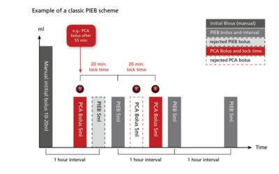 Comparison between conventional epidural analgesia and PIEB